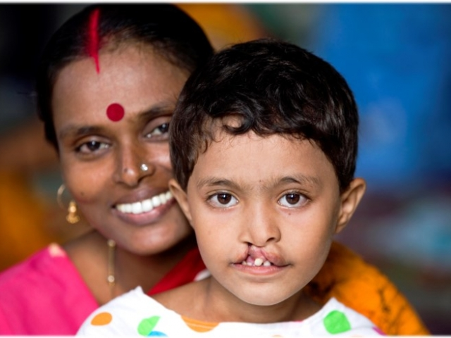 Varsha and Saumil's India Cleft Missions